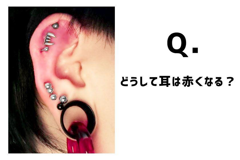 赤くなった耳の画像