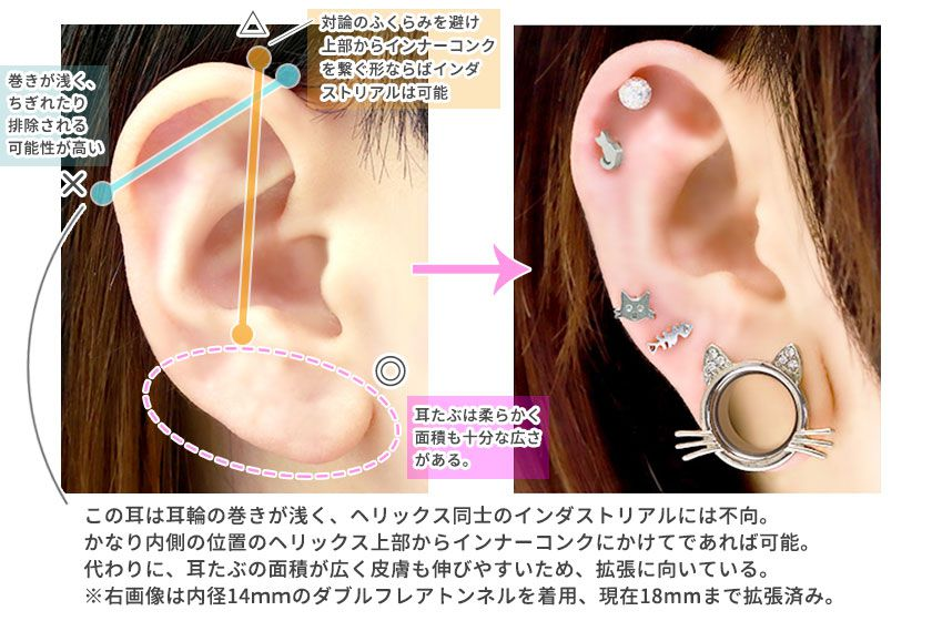 拡張に向いている耳